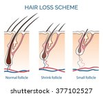 human hair loss scheme. growth... | Shutterstock .eps vector #377102527