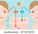 infographic skin illustration.... | Shutterstock .eps vector #377673574