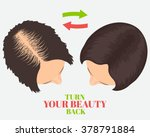 woman with alopecia before and... | Shutterstock .eps vector #378791884