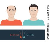 man with alopecia before and... | Shutterstock .eps vector #381355441