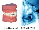 teeth model and x ray isolated... | Shutterstock . vector #385788934