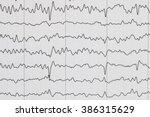 eeg wave background. | Shutterstock . vector #386315629