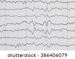 abnormal eeg brain wave on... | Shutterstock . vector #386406079