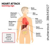 heart attack signs and symptoms.... | Shutterstock . vector #386543527