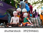 Small photo of MANGALORE, INDIA - FEBRUARY 14: Indian albino family (unidentified) beg for money on February 14, 2016 in Mangalore, India.
