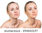 woman with problem skin on her... | Shutterstock . vector #394043197