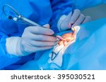 close up detail of a surgery of ... | Shutterstock . vector #395030521