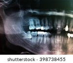 dental x ray shows extract... | Shutterstock . vector #398738455
