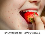 allergy food strawberry and... | Shutterstock . vector #399998611