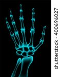 Vector X Ray Of Hand