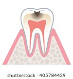 sectional view of tooth decay | Shutterstock . vector #405784429
