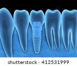 tooth human implant x ray  done ...   Shutterstock . vector #412531999