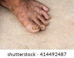 foot seniors | Shutterstock . vector #414492487