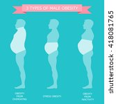 3 types of obesity. male figure ... | Shutterstock .eps vector #418081765