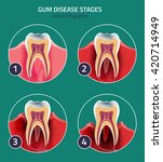 gum disease stages. editable... | Shutterstock .eps vector #420714949