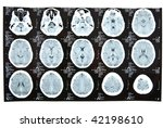 human brain xray image | Shutterstock . vector #42198610