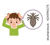 boy with lice. illustration of... | Shutterstock .eps vector #424590175