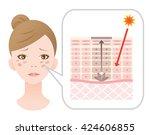 facial blotches and skin... | Shutterstock .eps vector #424606855