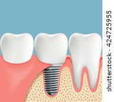 human teeth and dental implant. ... | Shutterstock .eps vector #424725955