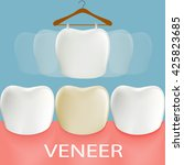 dental veneers. tooth anatomy.... | Shutterstock .eps vector #425823685