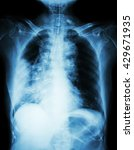 Small photo of Lung cancer . Film chest x-ray show right lung mass , wide mediastinum , pneumonia and right pleural effusion