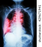 lung cancer .  film chest x ray ... | Shutterstock . vector #429671941