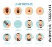 patients lyme disease and ticks.... | Shutterstock .eps vector #432330661