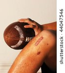 Small photo of ACL knee football injury