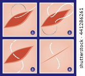 surgery suture precision point... | Shutterstock .eps vector #441286261