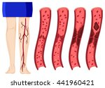 blood clot in human legs... | Shutterstock .eps vector #441960421