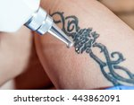laser tattoo removal from leg   ...   Shutterstock . vector #443862091
