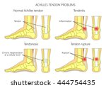 illustration of skeletal ankles ... | Shutterstock .eps vector #444754435
