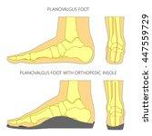 illustration of flat foot...