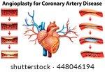 angioplasty for coronary artery ... | Shutterstock .eps vector #448046194