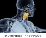 human thyroid gland. xray image.... | Shutterstock . vector #448444039