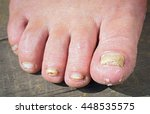 Fungus Infection On Nails Of...