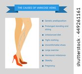 the causes of varicose veins.... | Shutterstock .eps vector #449261161