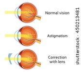 astigmatism corrected by a... | Shutterstock .eps vector #450213481