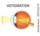 illustration of astigmatism.... | Shutterstock .eps vector #453762175