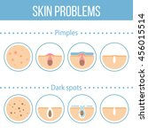 skin problems icons set. vector ... | Shutterstock .eps vector #456015514