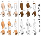 illustration first aid forearm... | Shutterstock .eps vector #461683144