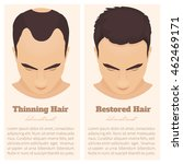 man with thinning and restored... | Shutterstock .eps vector #462469171