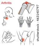 arthritis   Shutterstock .eps vector #463140797