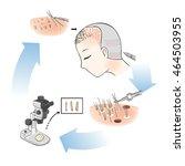 follicular unit hair... | Shutterstock .eps vector #464503955