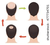 hair loss stages set. rear view ... | Shutterstock . vector #477734701