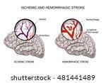 illustration of a rupture of... | Shutterstock .eps vector #481441489