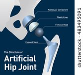 structure of the artificial hip ... | Shutterstock .eps vector #483495091