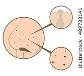 acne treatment illustration ... | Shutterstock .eps vector #489733141