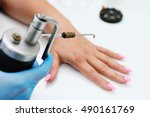 removal of warts in dermatology ... | Shutterstock . vector #490161769