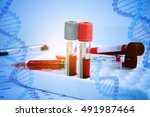 Dna Testing Of The Blood In Th...